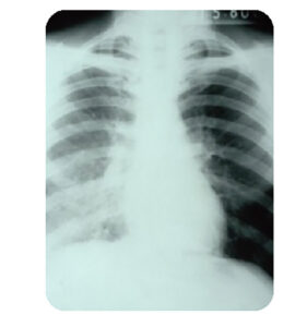A lung infected with legionella